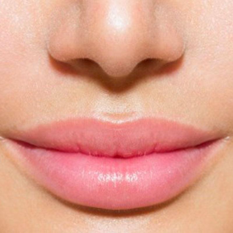 Aumento volumetrico labbra